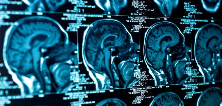 epilepszia tünetei