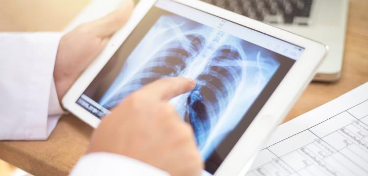 Tüdőszűrés – Kinek milyen gyakorisággal ajánlott?