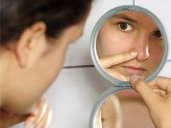 A bőr alaptípusai