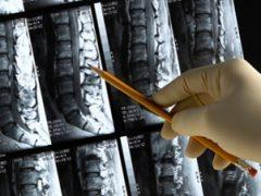 A csontritkulás megelőzése
